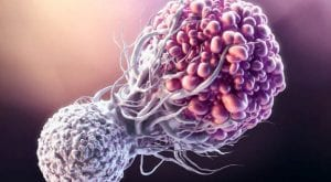 World Cancer Day: Free treatment of cancer in Pakistan