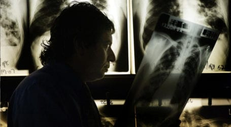 COVID-19 lockdown risks 1.4 million extra TB deaths: study